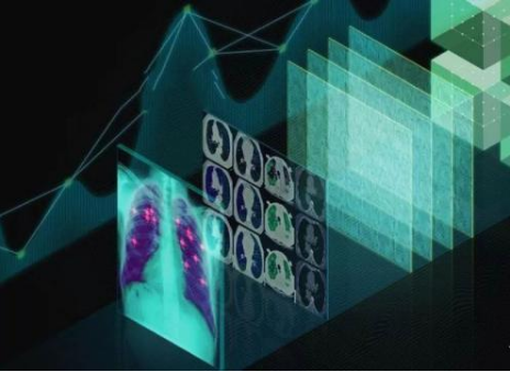 Will deep learning be the future of the medical industry